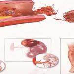 Ишемическая болезнь сердца. Показания, Факторы риска.